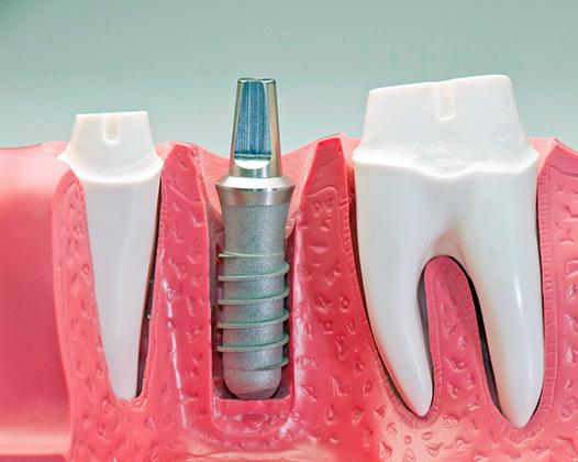 Стоимость восстановления зубов