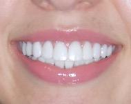 Что такое виниры и как выбрать накладки на зубы