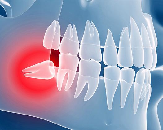 Ретенированные зубы
