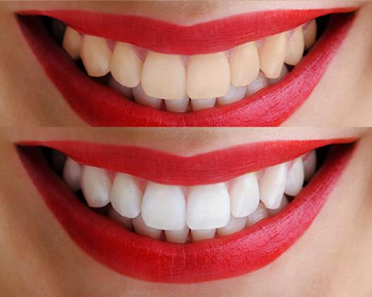 Отбеливание зубов системой Opalescence ― профессиональное осветление без ламп