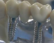 Имплант - первая помощь при потере зуба