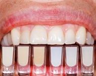 Композитные виниры - быстрое и надежное восстановление зубов.