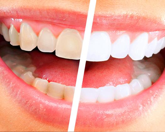 Отбеливание зубов: виды и их особенности
