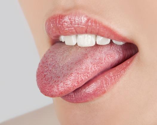 Белый налет на языке. Причины и что делать?
