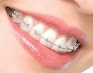 Выравнивание зубов в стоматологической практике: основные способы и цены