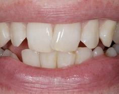 Реставрация винирами - зубы до и после винирования