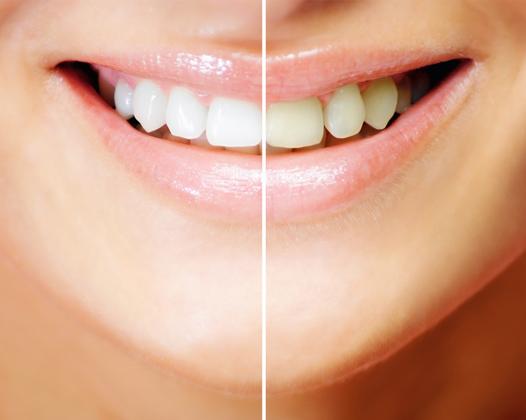 Косметическое отбеливание зубов — деликатная процедура