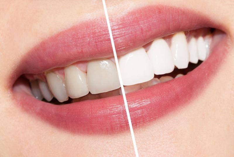 Как зубы сделать белыми видео