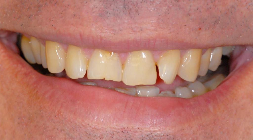Здесь нужна реставрация зубов, присутствуют все признаки, обширные поражения, сколы, пришеечный кариес. Изменение цвета зубов на желтый (тетрациклиновый цвет)