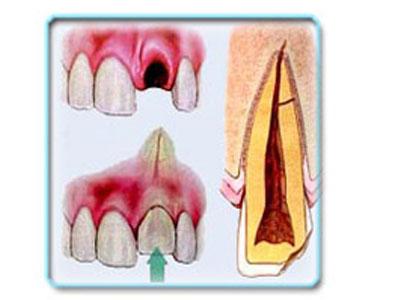 Лечение выбитого зуба у ребенка