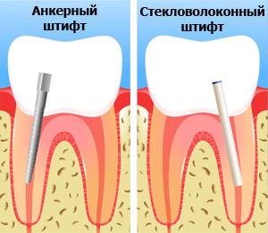 Зуб на штифт показания
