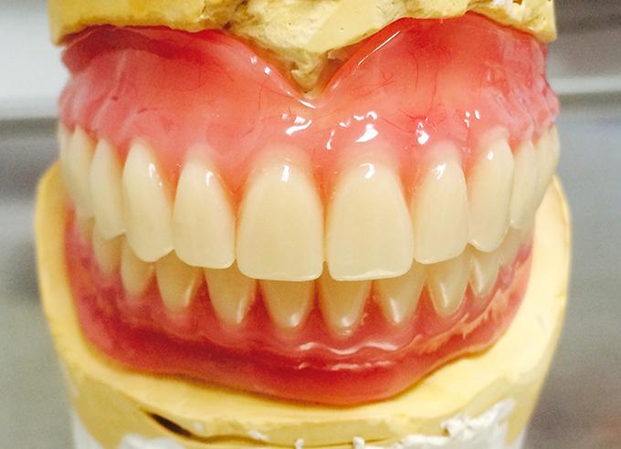 Съемные зубные протезы на гипсовой модели клиника Лидерстом город Москва