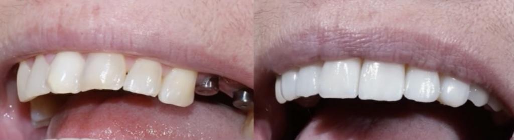 Аномалия роста зубов