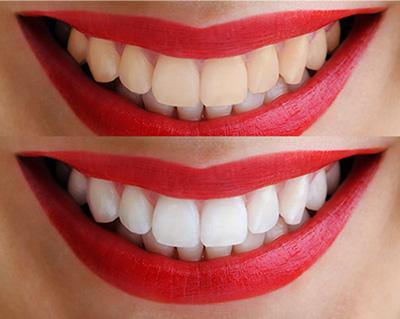 Качественное отбеливание зубов