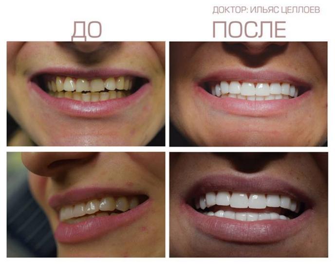 Реставрация зубов люминирами. Фото до и после, конкурсная работа Целлоева Ильяса