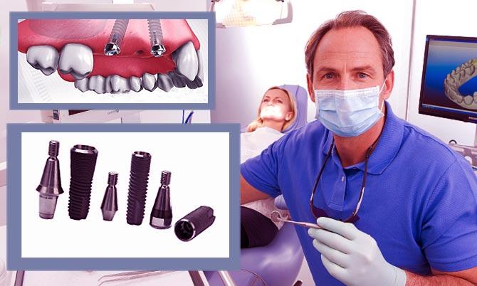 Имплантация зубов профессионально