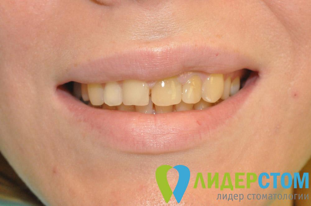 стоматологические виниры что это
