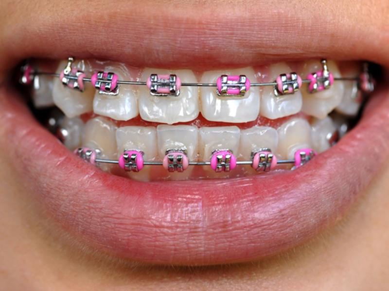 зубные виниры до и после