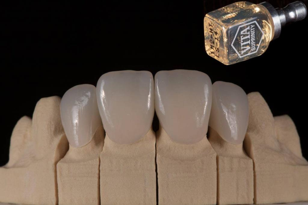Циркониевые коронки изготовленные на аппарате Cerec 3D. Цена за качество.