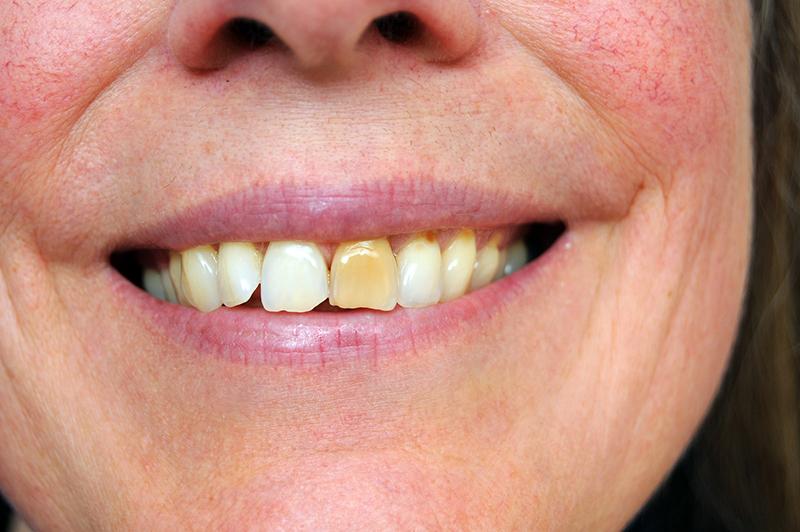 Желтое пятно на зубах