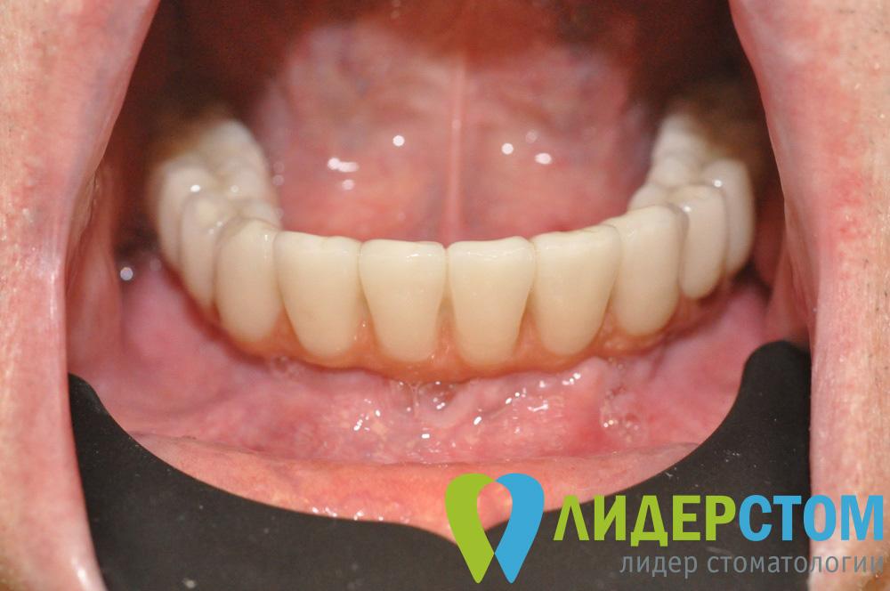 Протезы зубные без обточки соседних зубов