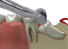 udalenie-korennogo-zuba.jpg