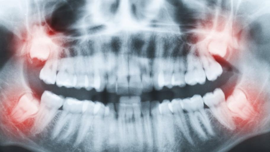 Противопоказания к имплантации зубов и возможные осложнения