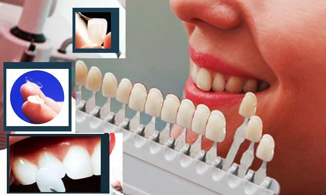 Художественная реставрация зубов люминирами, плюсы методики, люминиры тонкие и прочные на фото