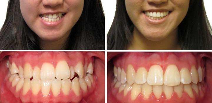 Как сделать зубы если их не осталось 330