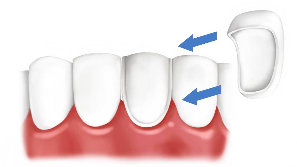 виниры на зубы можно ли кушать