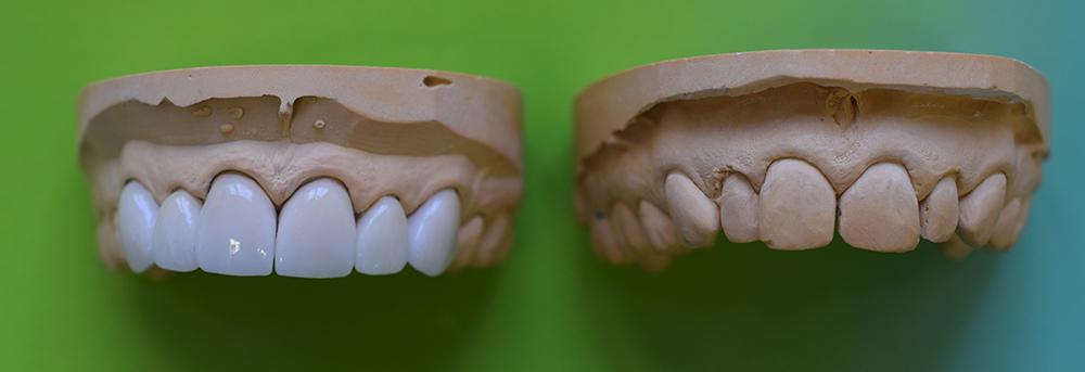 как долго служат виниры на зубах