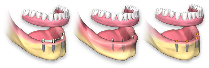 full-arch-dental-implant-removable4.png