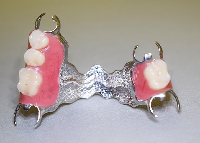 Бюгельный протез популярный вид протезирования зубов