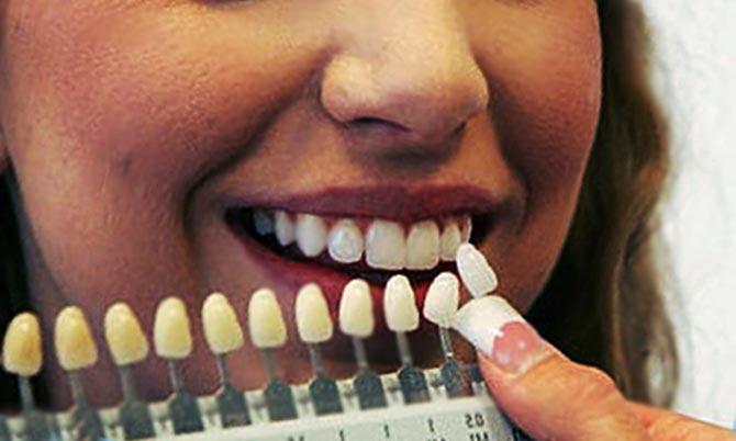 этапы экспресс имплантации зубов