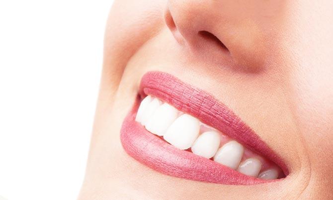 быстрое отбеливание зубов в домашних условиях