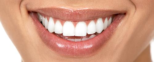 Особенности отбеливания зубов