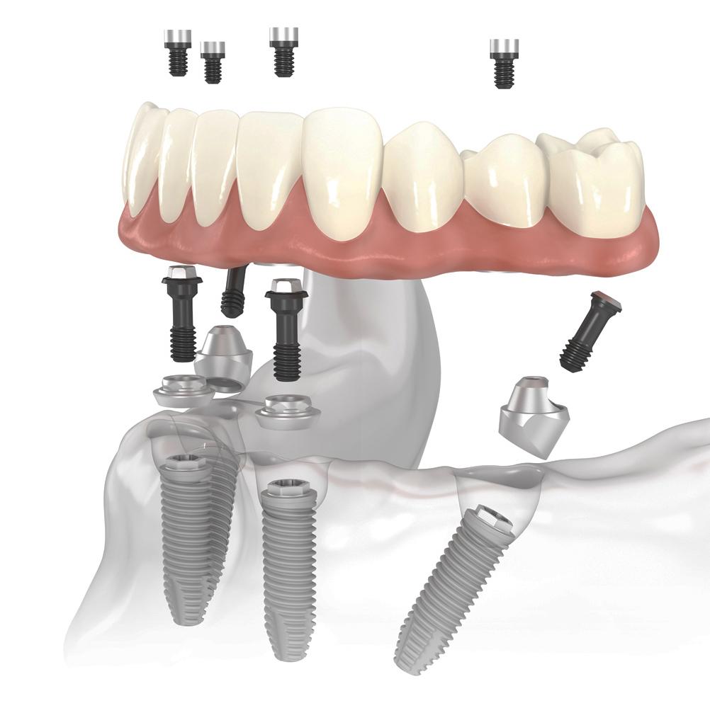 Стоимость полной имплантации зубов