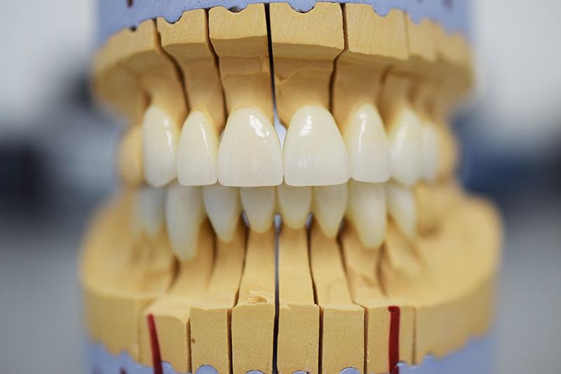 Циркониевые коронки эталон протезирования зубов на имплантах