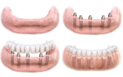 Отбеливание зубов показание противопоказание