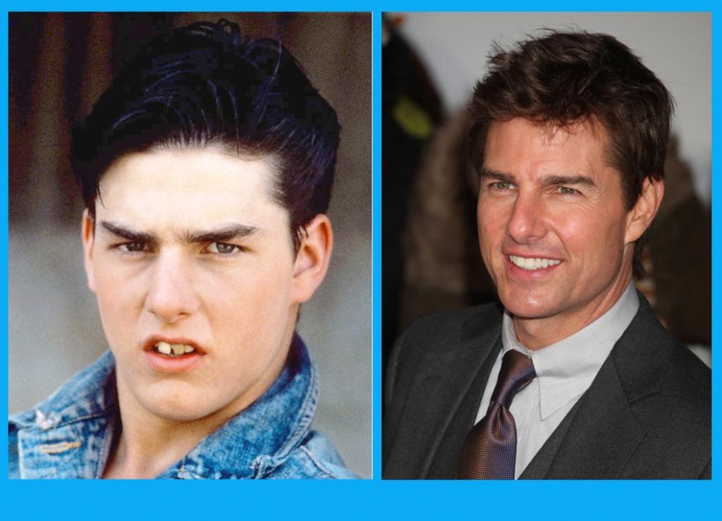 Том Круз до и после реставрации зубов. Шикарная улыбка сыграла свою роль в карьере