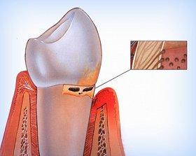Симптомы воспаления зуба мудрости