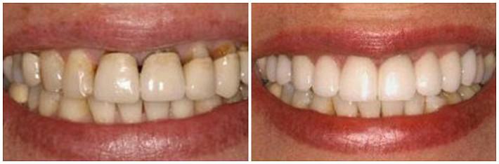 Работа по восстановлению эстетики улыбки