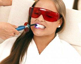 Самые эффективные  методы отбеливания зубов у стоматолога и в домашних условиях. Противопоказания для отбеливания зубов