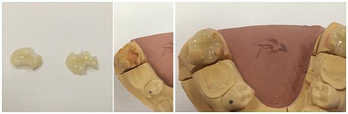 Технология керамической реставрации Церек (Cerec)